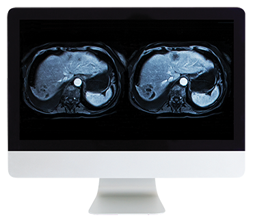 Abdominal and Pelvic MRI Online Course