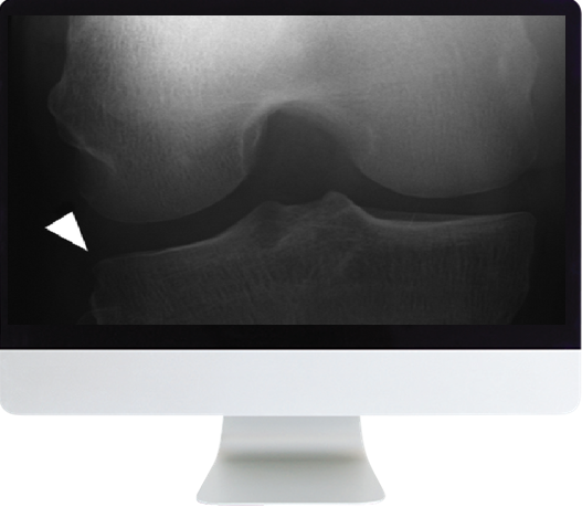 Musculoskeletal Imaging for the Practicing Radiologist Online Course