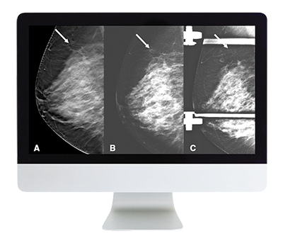 Breast Imaging: Screening to Diagnosis Online Course