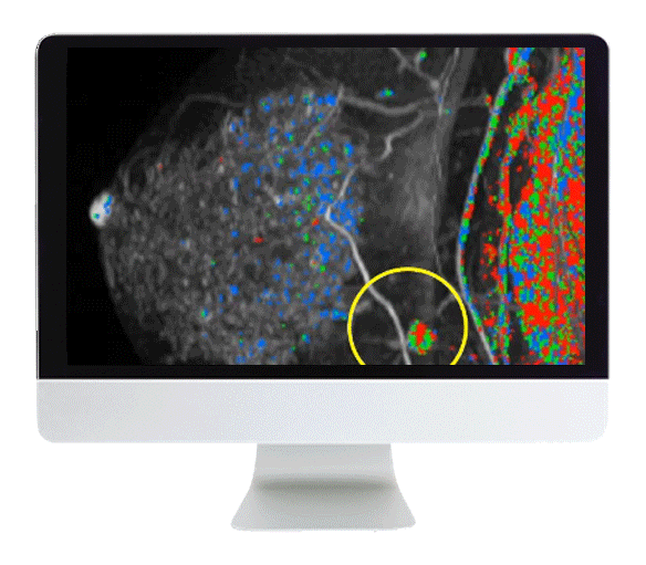 OC_BR20 – Breast Imaging Pearls and Pitfalls