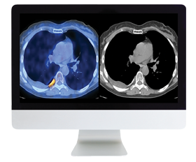 Practical PET/CT: What You Need to Know